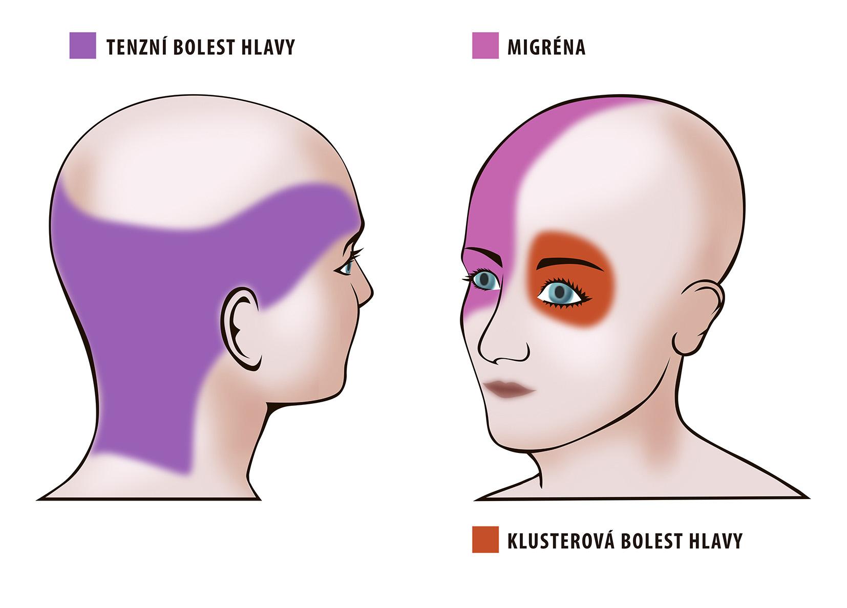 druhy bolesti hlavy